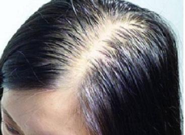 脱发 (2)